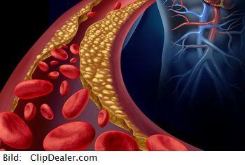 Hypertonie und Mikronährstoffe